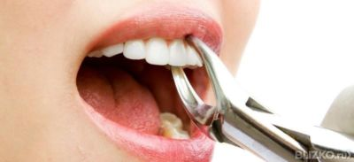 Удаление зуба мудрости при орви